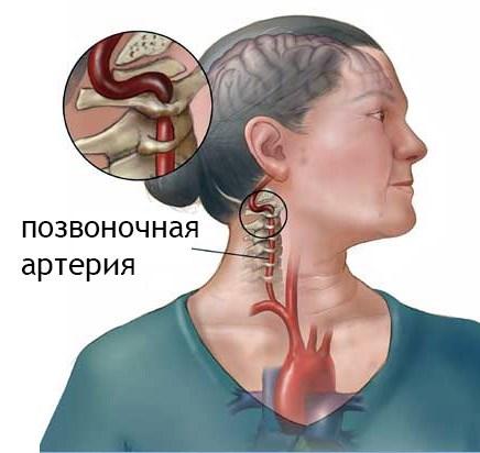 önmasszázs nyaki hipertónia
