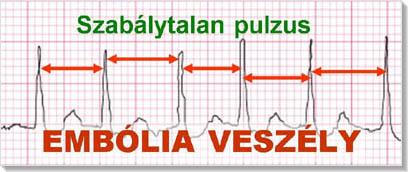 diuretikumok magas vérnyomás ellen népi gyógymódokkal fejfájás magas vérnyomással