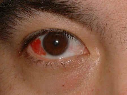 magas vérnyomás esetén a szem vörös)
