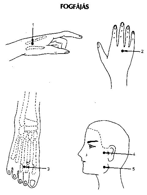 pontok a fülön a magas vérnyomás miatt