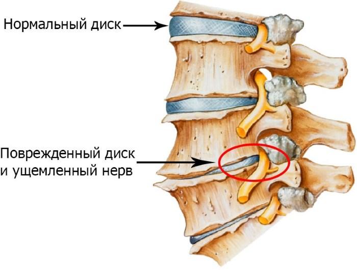 hipertónia komplex gyakorlása)