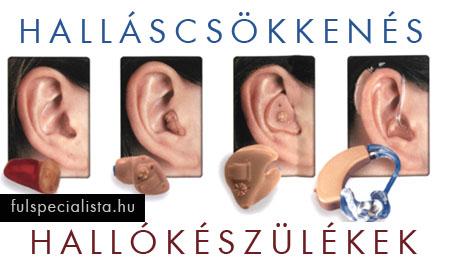 magas vérnyomásos fülzúgással
