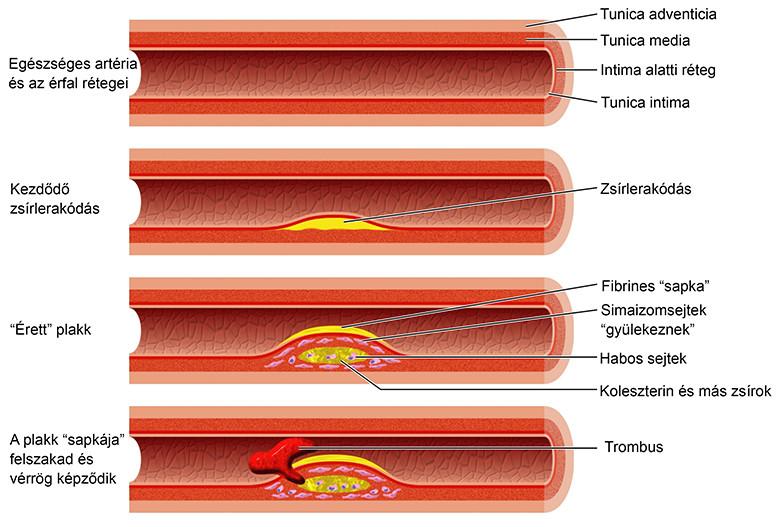 mi az APF és a magas vérnyomás