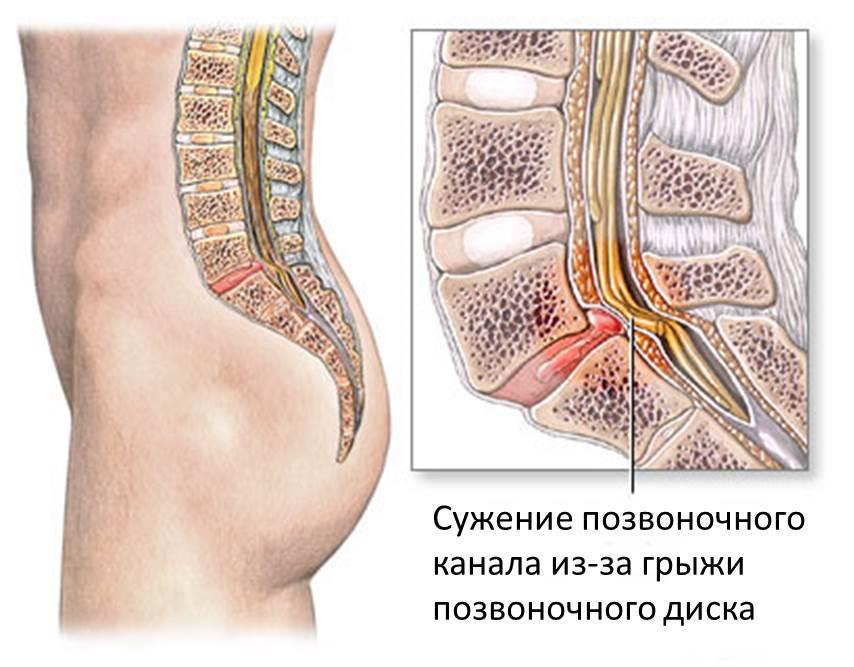 videomasszázs hipertónia akupresszúrához)