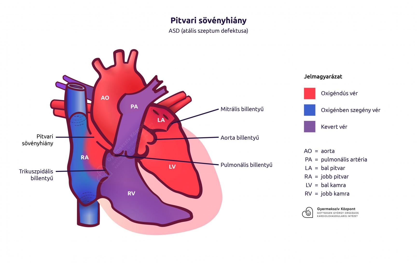 Pitvarfibrilláció 11 oka, 6 tünete, 4 fajtája és 9 kezelési módja [teljes leírás]