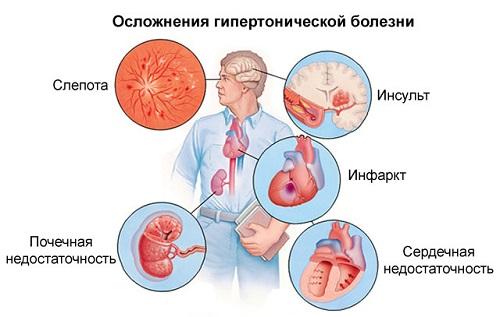 másodfokú hipertónia diagnózisa