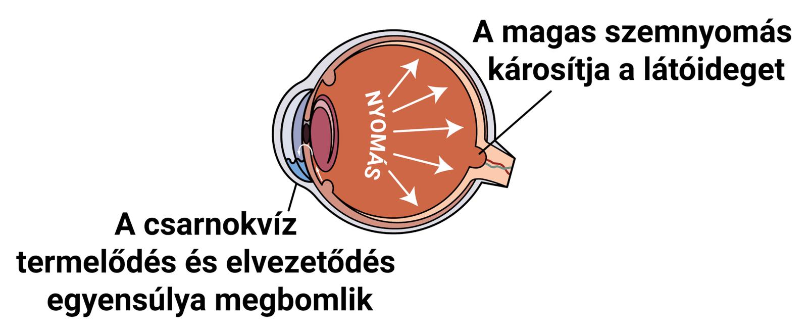 Zöldhályog eltávolítás – Szemészeti vizsgálat - Budapesti Szemklinikák