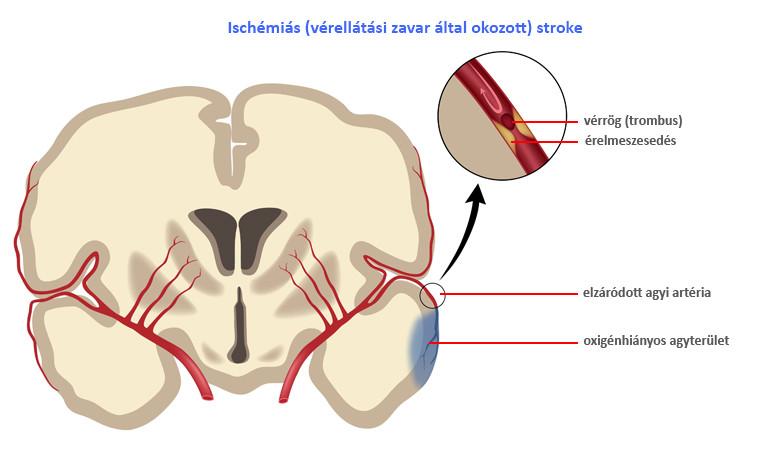 magas vérnyomás ischaemiás stroke-ban