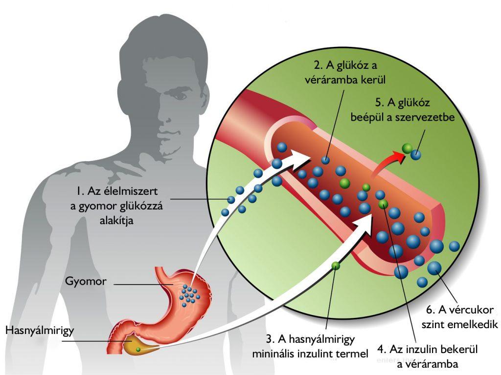 2-es típusú cukorbetegség magas vérnyomása magas vérnyomás szokatlan kezelések