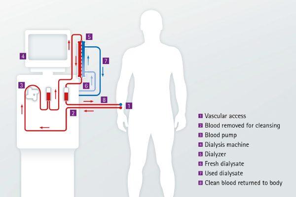 gyógyszerek fogyáshoz magas vérnyomás esetén gyógyszerek magas vérnyomás kezelésére 2-es típusú cukorbetegségben