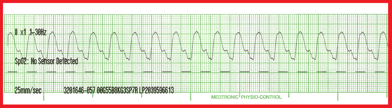 tachycardia kezelése magas vérnyomásban