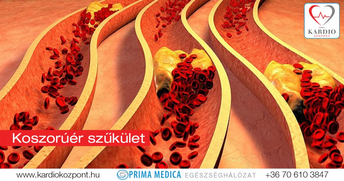 koszorúér-magas vérnyomás disszertáció hipertónia