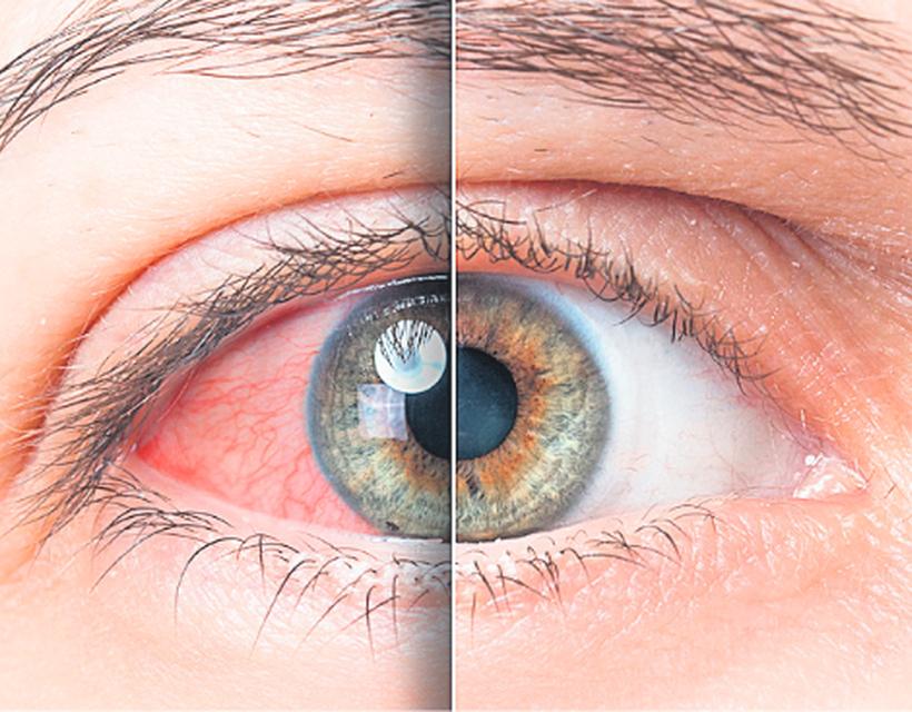 a szem enyhe magas vérnyomása
