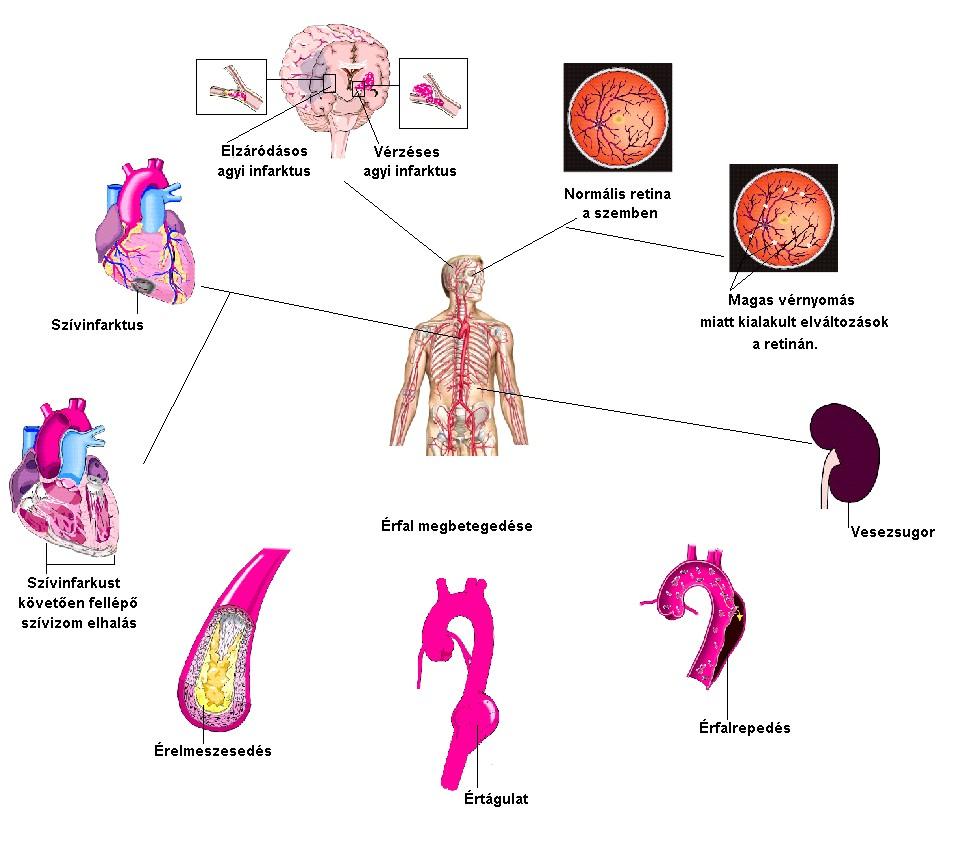 a vese magas vérnyomásának kezelése és)