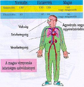 magas vérnyomás és szövődményei)