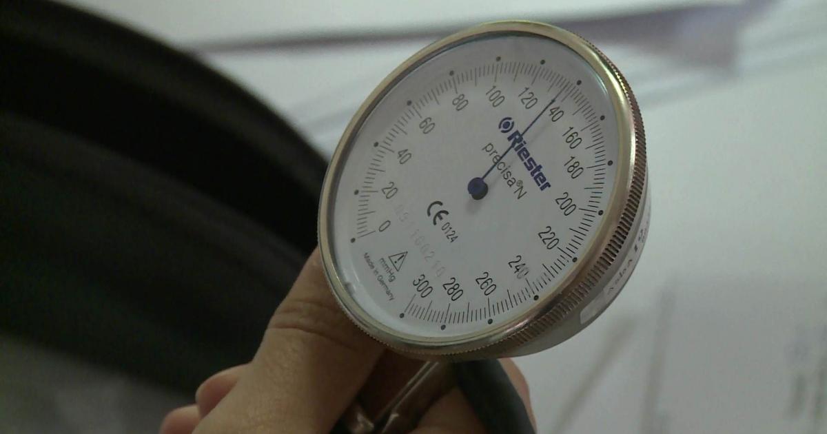 az erek hipotenziója és magas vérnyomása