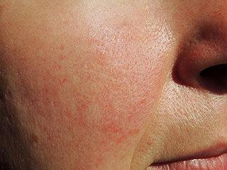 duzzanat az arcon magas vérnyomás esetén)