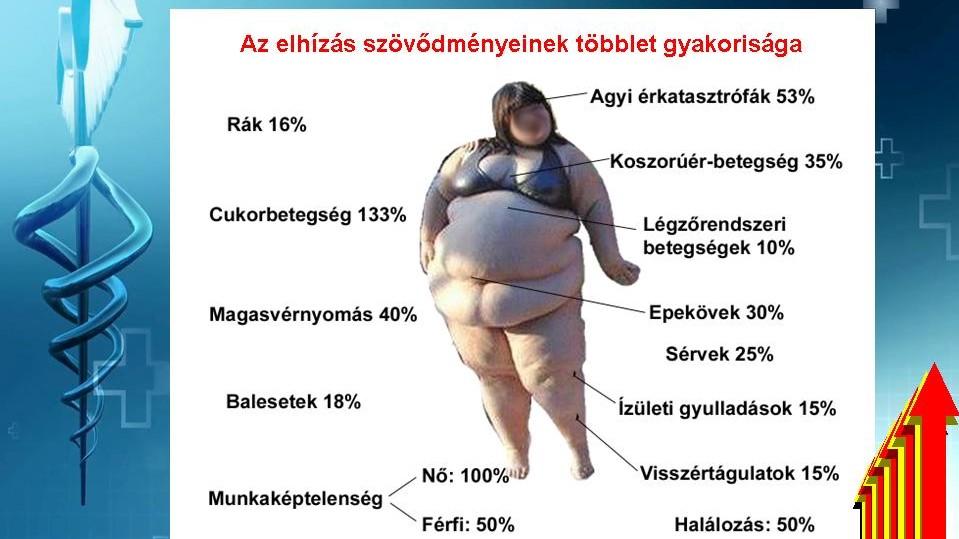 magas vérnyomás diabetes mellitus elhízás)
