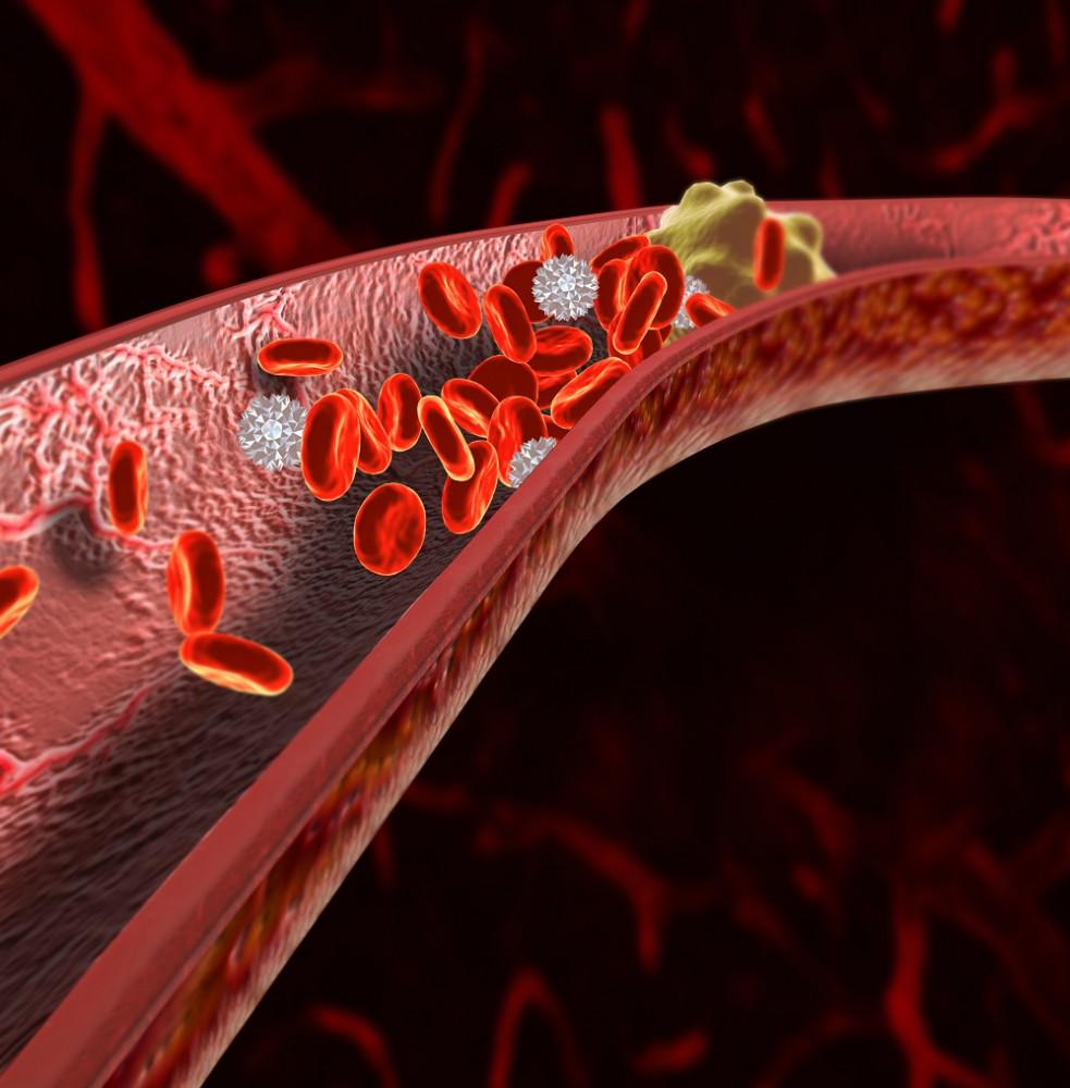 koszorúér-magas vérnyomás a sör miatt magas vérnyomás léphet fel