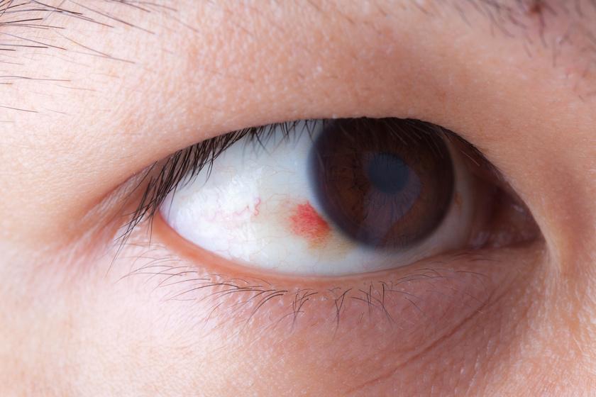szemgolyó magas vérnyomás magas kockázatú 2 fokú magas vérnyomás
