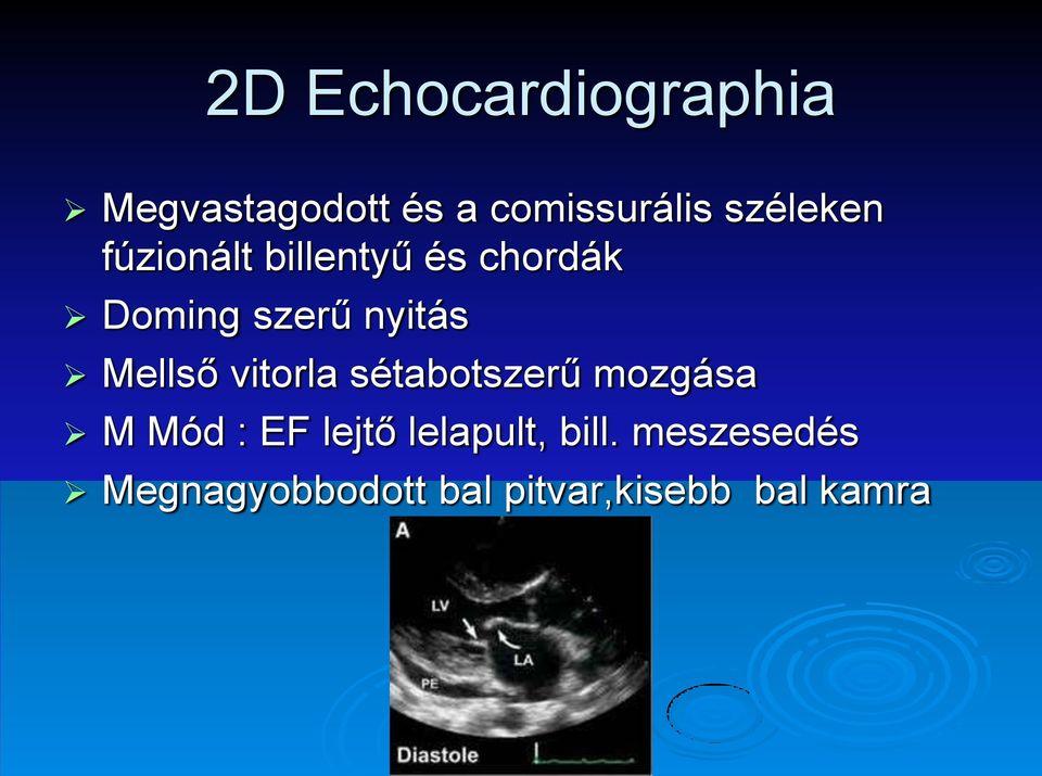 ASD hipertóniás felülvizsgálatokra)