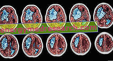 magas vérnyomás ischaemiás stroke-ban)