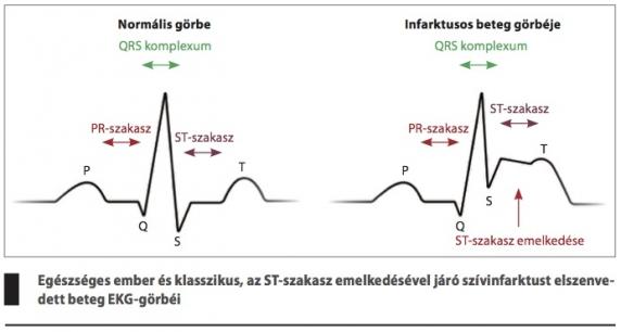 mi az ecg magas vérnyomás)