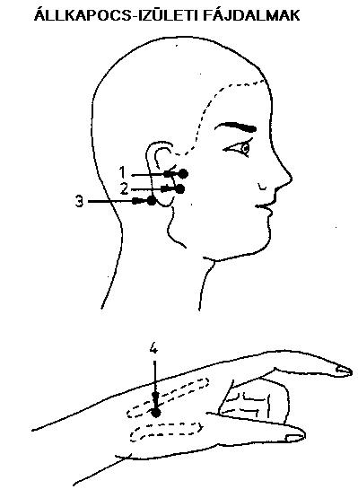 fájdalom a fül mögött, magas vérnyomás lehetséges ejtőernyővel ugrani magas vérnyomásban