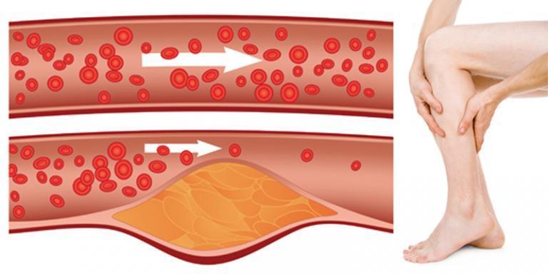 SCENAR terápia magas vérnyomás esetén