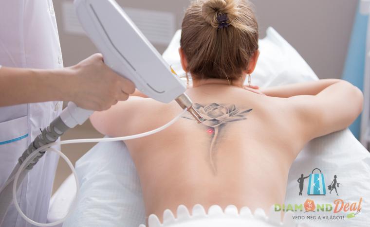 pressoterápia magas vérnyomás