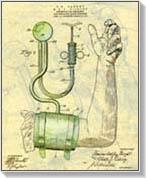 az allopurinol alkalmazása magas vérnyomás esetén