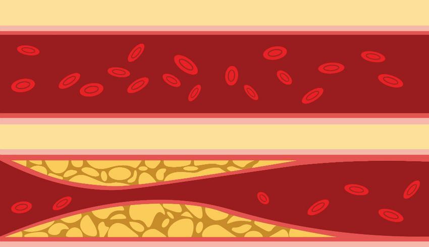 a vér erek változásai magas vérnyomással
