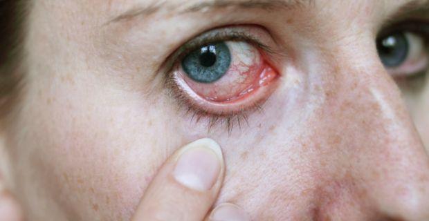 hipertóniában fáj a szem