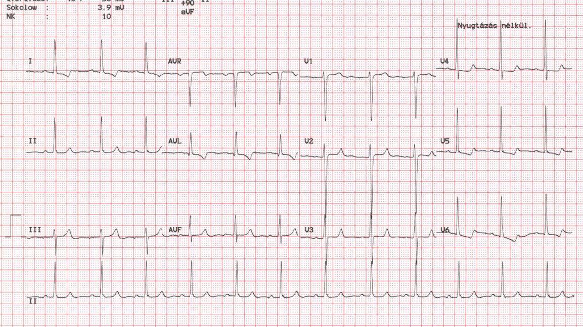 magas vérnyomás EKG terheléssel)