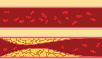 a magas vérnyomás szakaszairól)