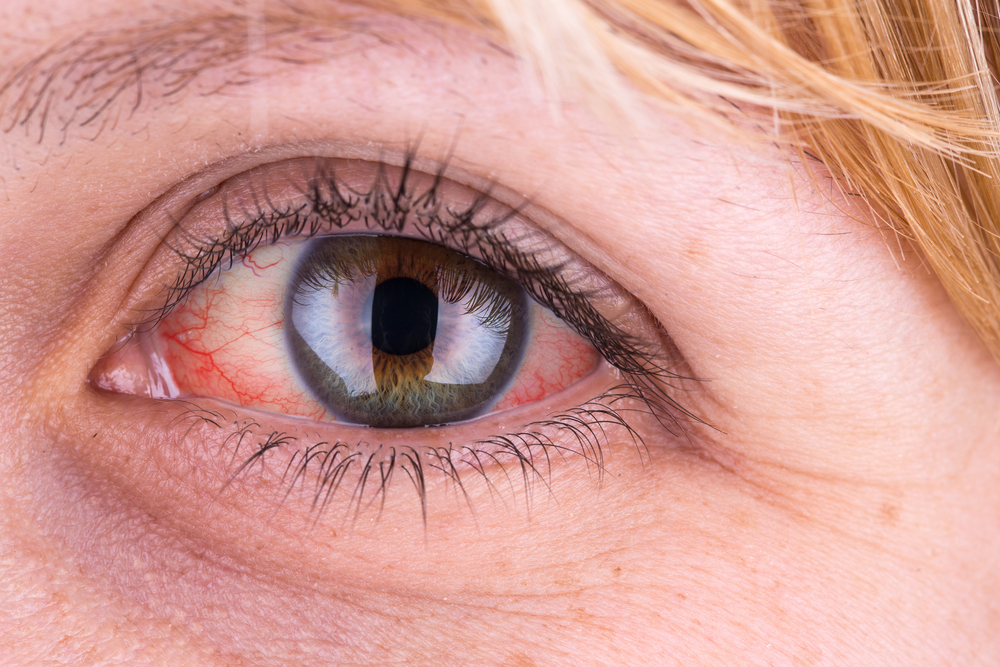 a szem enyhe magas vérnyomása magas vérnyomás anyagcserezavarok