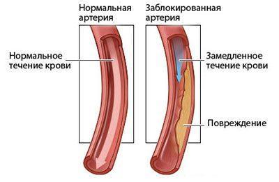 kórházi regisztráció hipertónia terapeutánál)