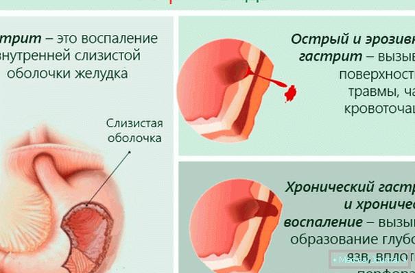 magas vérnyomás sport erőemelés hiperkinetikus hipertónia