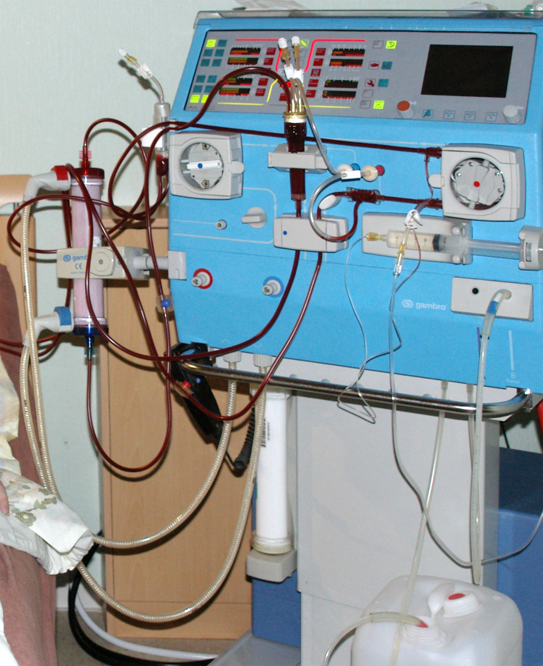 magas vérnyomás kezelés hemodialízissel)