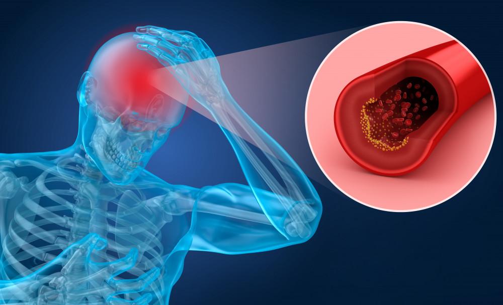 magas vérnyomás nélküli stroke denas hipertónia kezelése