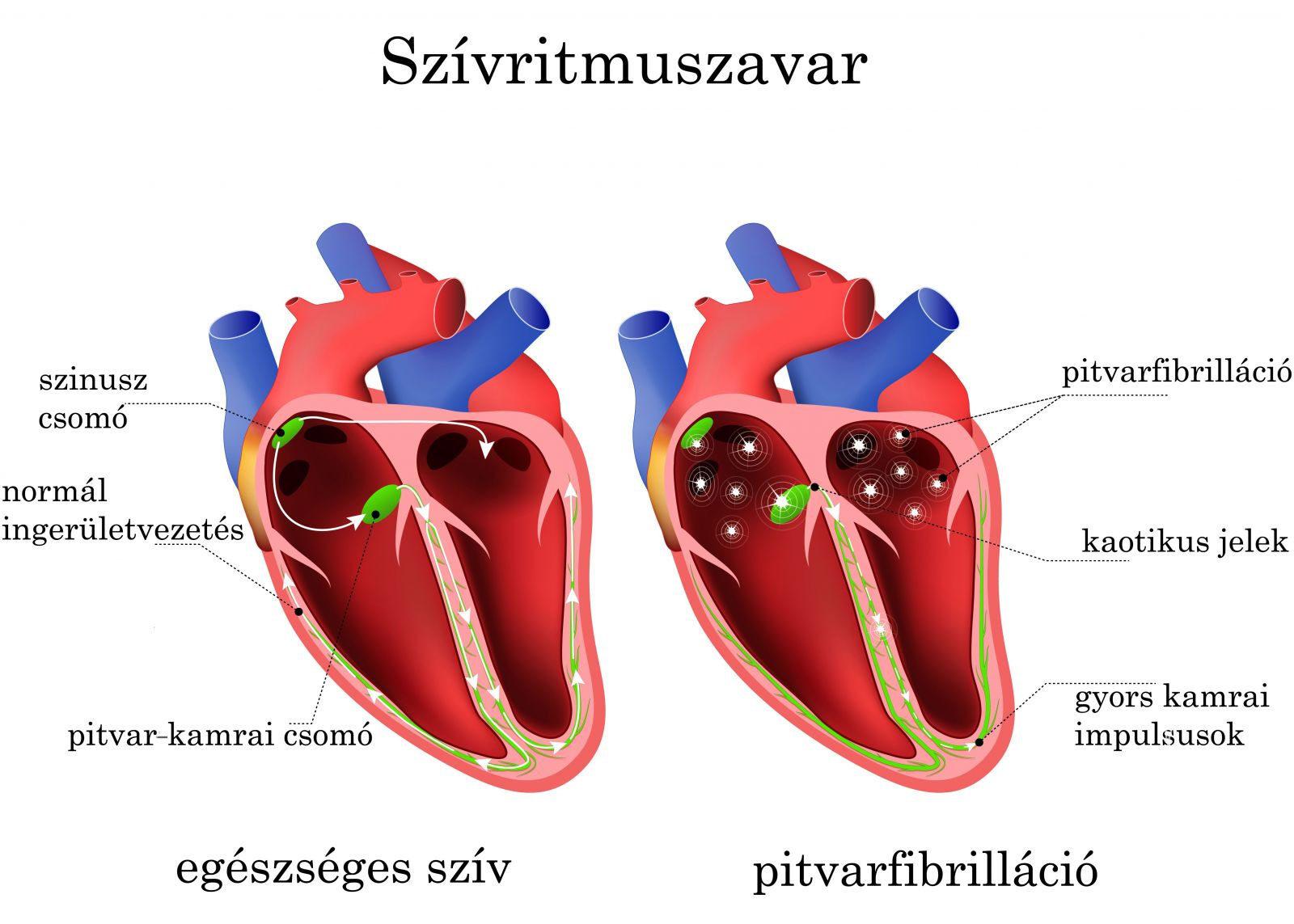 szívritmuszavar magas vérnyomás esetén