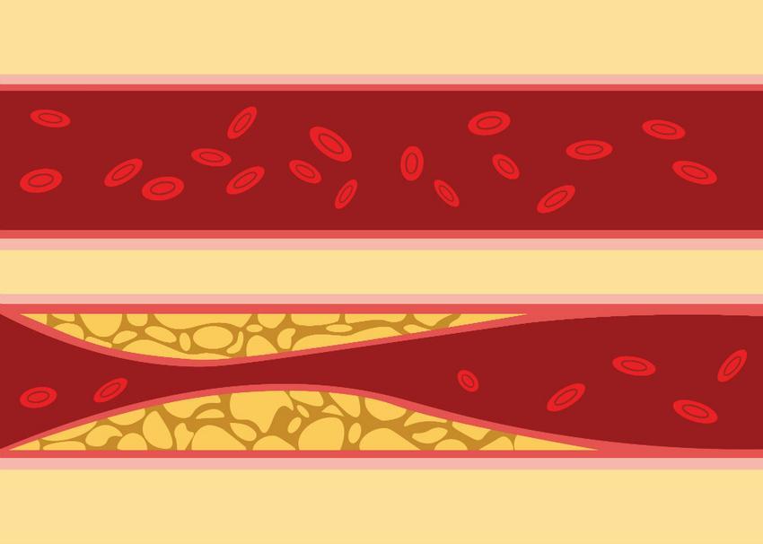 hogy a magas vérnyomás hogyan befolyásolja a karaktert stádiumú magas vérnyomás