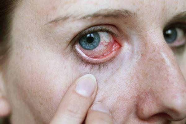 szemgolyó magas vérnyomás magas vérnyomás 1 fokos népi gyógymódok
