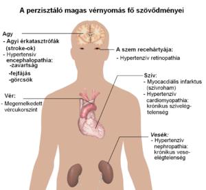 Magasvérnyomás-betegség