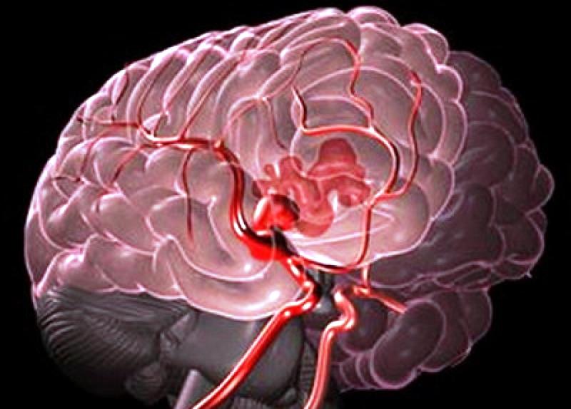 magas vérnyomás okozta agyi vérzés magas vérnyomás 20 és évesek